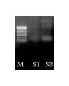 Urine DNA Isolation Kit