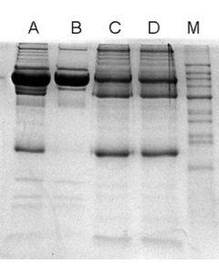 ProteoSpin Abundant Serum Protein Depletion Kit